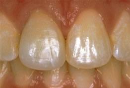 porcelain crown - smile dental, smile makeover, smile gallery