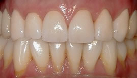 Patient after porcelain crowns