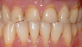 porcelain crowns before - smile dental, smile makeover, smile gallery