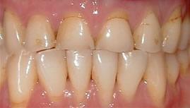 porcelain crowns before - smile dental, smile makeover, smile gallery