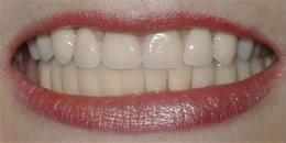 smile dental, smile makeover, smile gallery