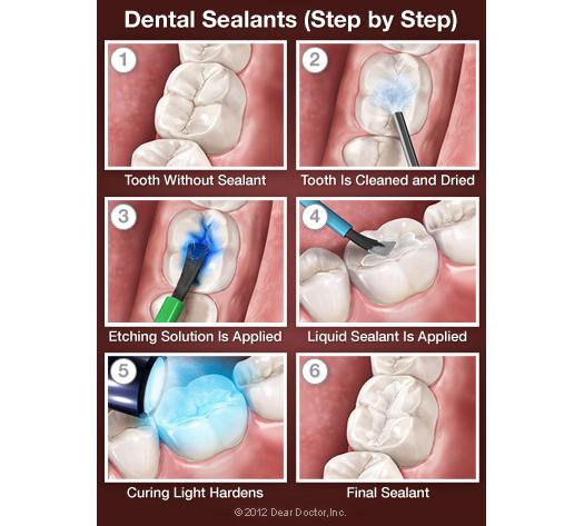 dental sealants process to reduce cavities
