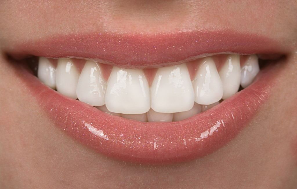 composite veneers, benefits of veneers