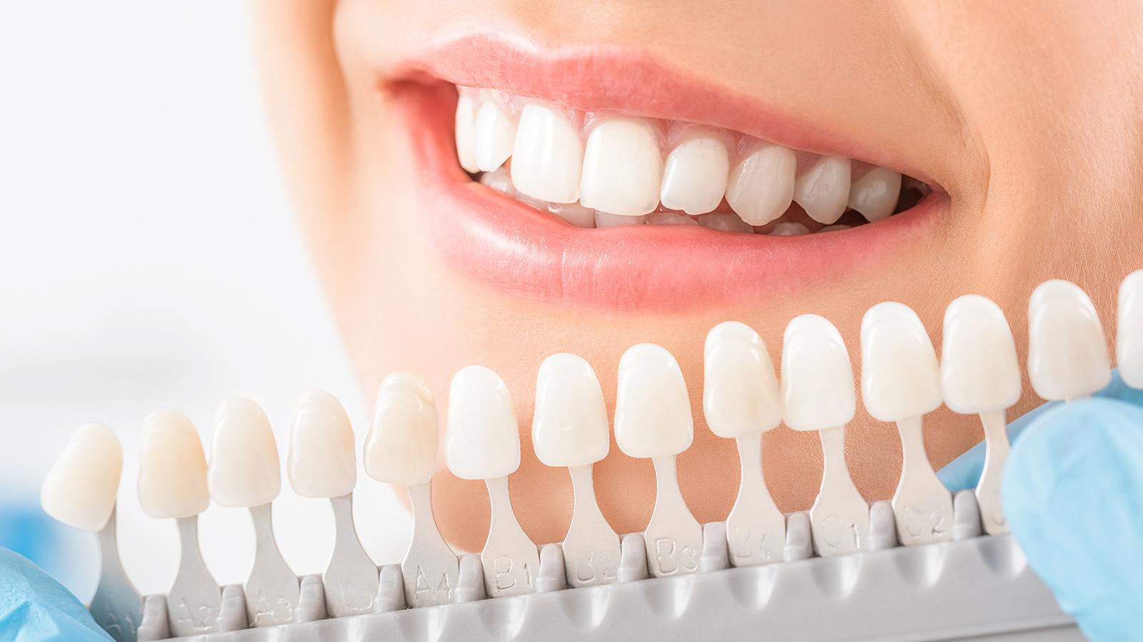 Professional Teeth Whitening Process & Results | Gregg M. Festa, DDSGregg M. Festa, DDS