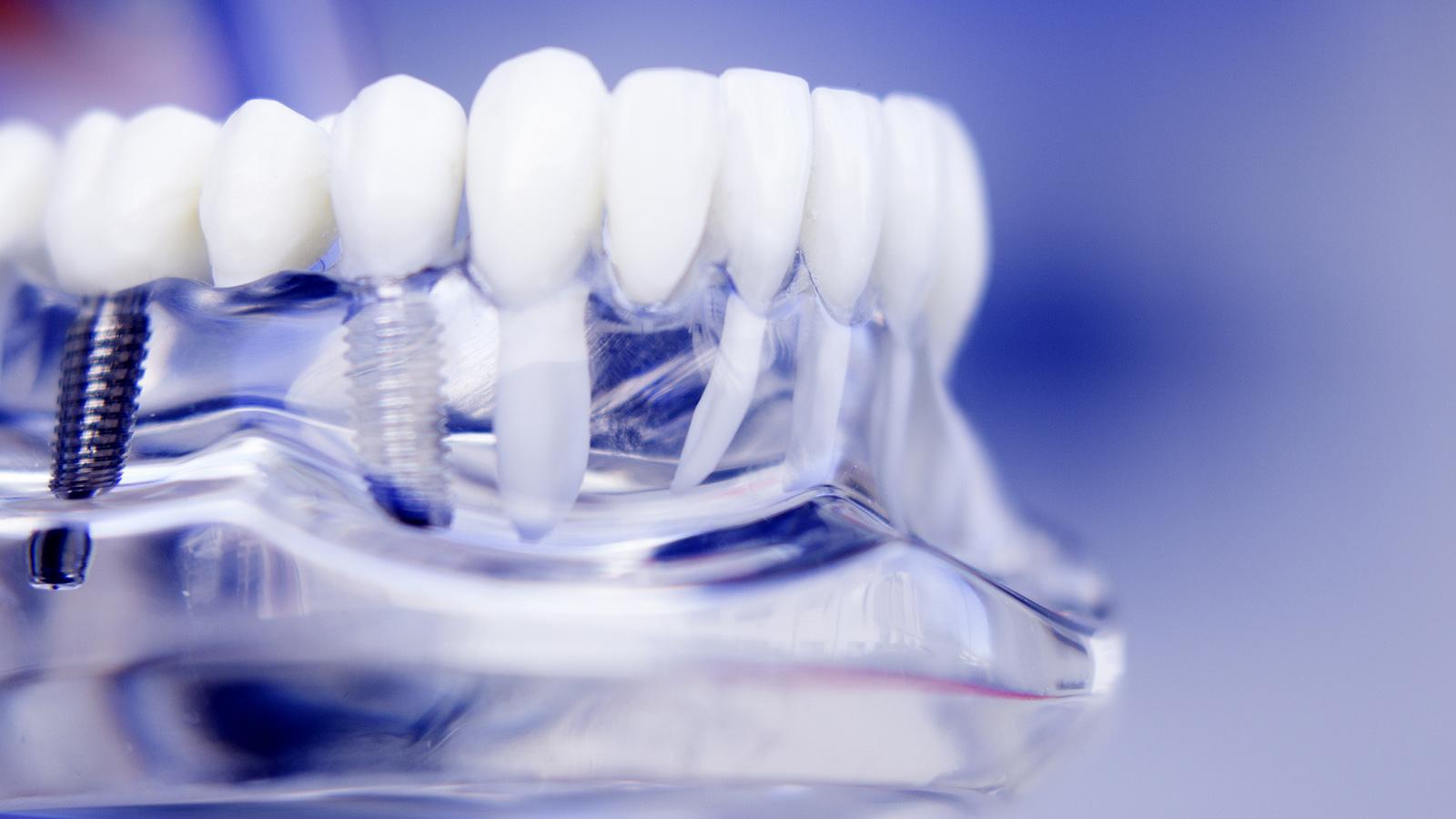 Dental Implant Dentist Dental Implant Surgery Gregg M Festa Ddsgregg M Festa Dds